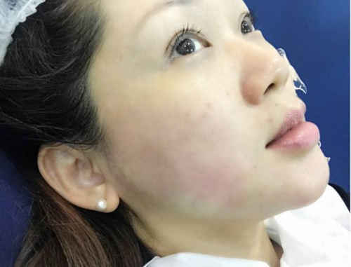 Redness During HIFU Treatment